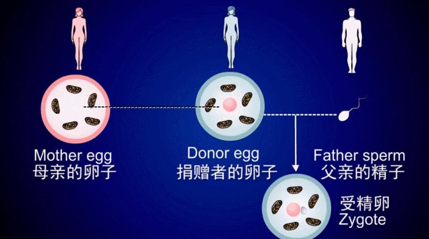 第四代试管婴儿技术, 卵胞浆置换技术,GVT