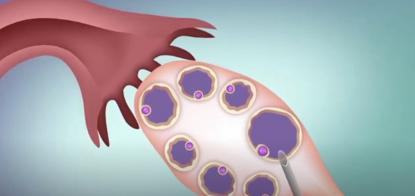 试管婴儿流程—取卵和受精