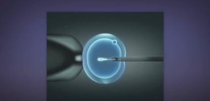 取卵和受精