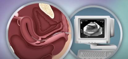 胚胎移植和着床