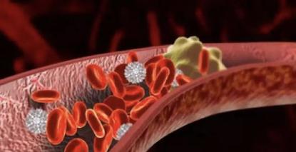 胚胎移植失败的原因——子宫内膜炎症