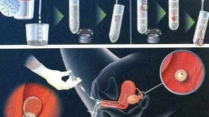 胚胎移植后注意事项