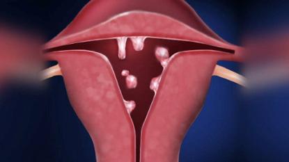 胚胎移植失败的原因,子宫息肉