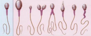 精子畸形怎么办? 1